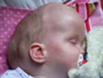 Side view of macrocephaly with hydrocephalus and cysts